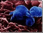 Число заболевших А/Н1N1в РФ увеличилось до 180