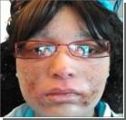 После стероидов женщина обросла ногтями по всему телу. Фото