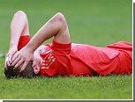 У футболиста сборной России выявили сотрясение мозга