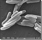 Ученые: Туберкулез появился в Африке 70 тыс лет назад