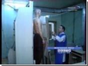 В Восточной Европе складывается опасная ситуация с рапространением туберкулеза