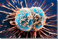 Рост смертоносной раковой опухоли объяснили математически