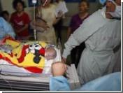 В Китае успешно разделили 28-дневных сиамских близнецов, сросшихся животами