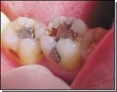 Pазработанные американскими учеными пломбы намного прочнее самого зуба