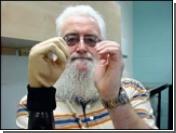 Шотландец получил  бионическую руку