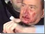 Путин поддержал словами друга Берлускони, получившего в морду от психа