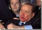 Путин по телефону успокоил покоцаного Берлускони
