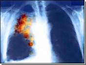 У любителей покурить с утра больше шансов заработать рак легких
